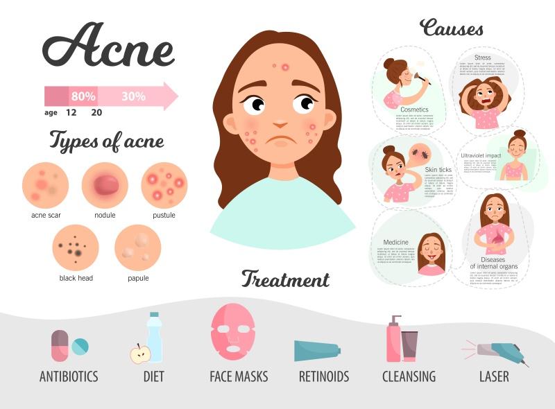 léčba akné - infografika