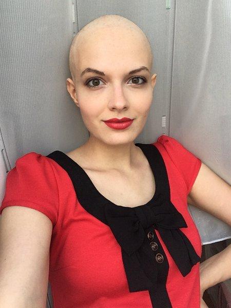 Niky Musilová - pacientka s rakovinou prsu