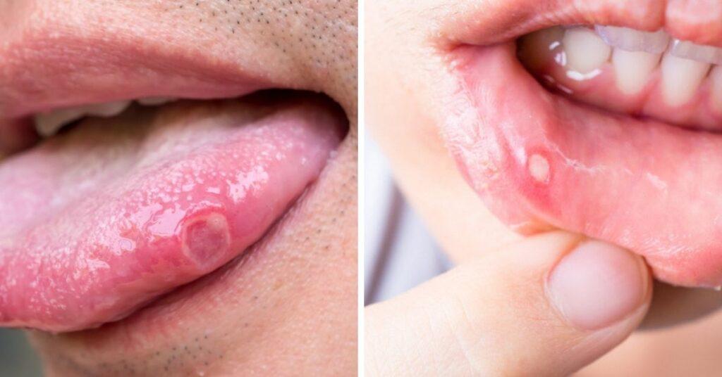 afty na jazyku
